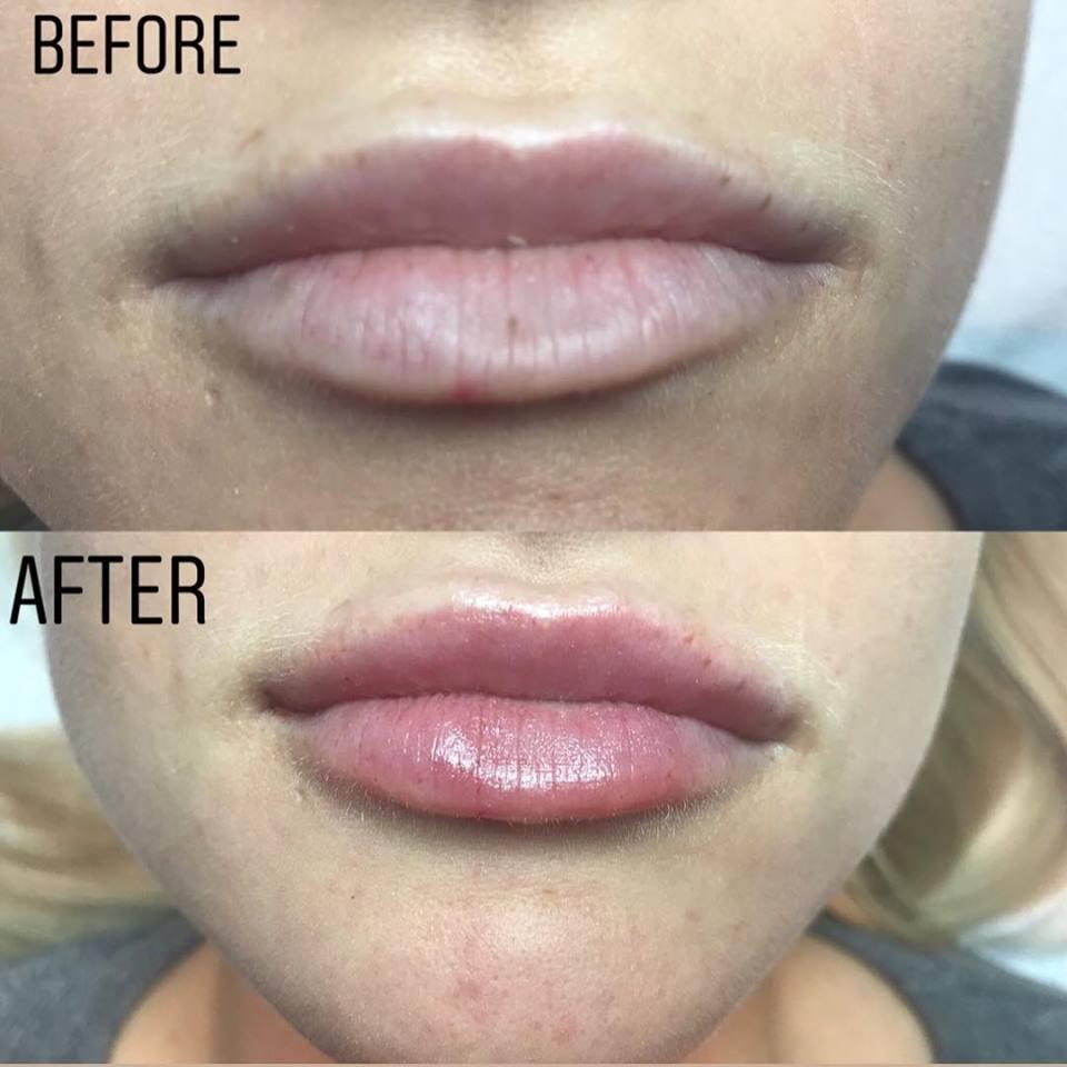 lips ba pic 1