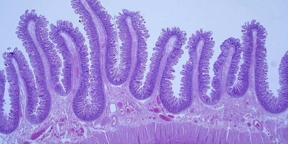 Actualización en diagnóstico y reporte de cáncer urotelial
