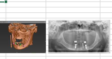 総義歯もインプラントで安定