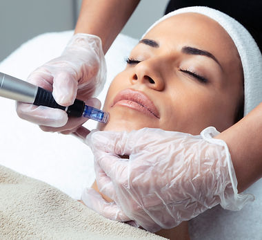 Shot of cosmetologist making mesotherapy injection with dermapen on face for rejuvenation