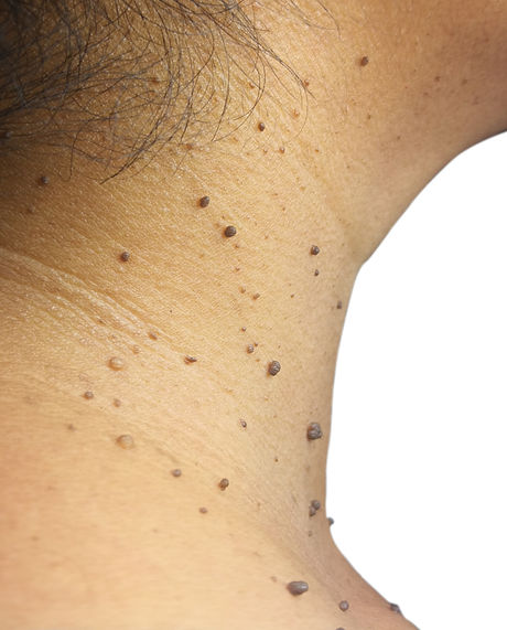Closed up the skin tags on woman's skin