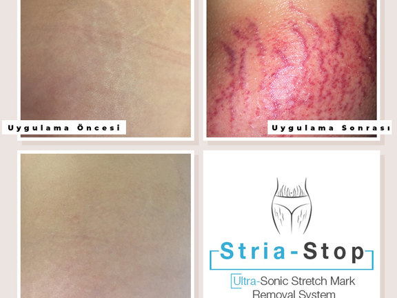 Stretch Marks Treatment on Belly