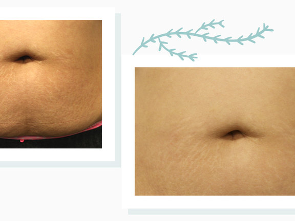 Stretch Marks Removal on Belly