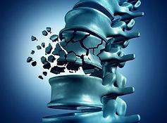 osteoporose-en-rugklachten_1.jpg