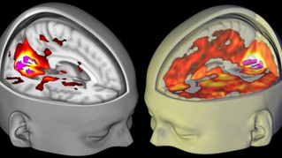 Brain Scans Reveal How LSD Affects Consciousness