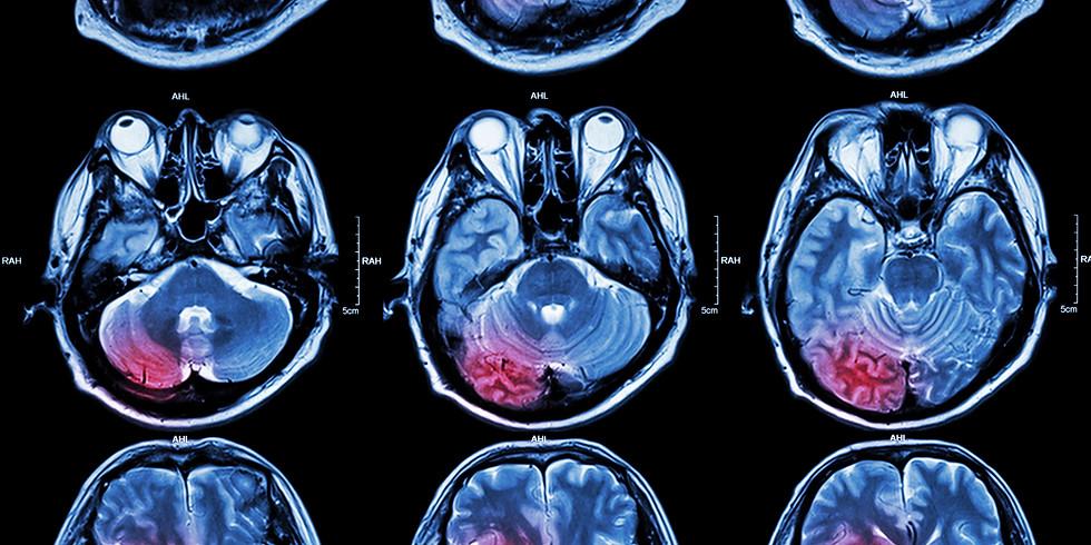 Management Innovation in Acute Brain Stroke | 5 CME