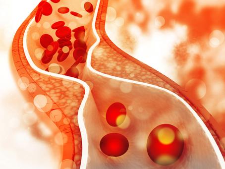 Mity i błędne leczenie zatkanych tętnic i miażdżycy