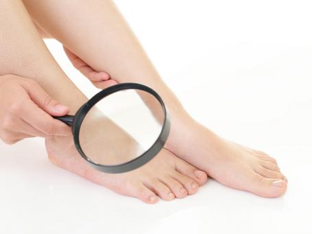 Zobacz co stopy mówią Ci o wątrobie?