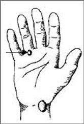 גנגליון על גידים בכף היד