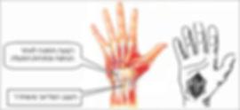 כף היד לאחר ניתוח