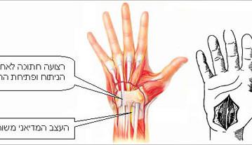 תסמונת התעלה של שורש יד - הטיפול