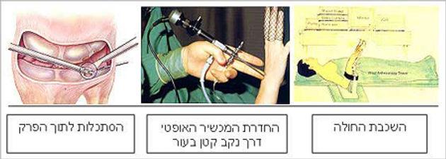 טיפול אנדוסקופי בשורש היד