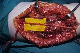 המרפק בזמן ניתוח בשיטה הפתוחה