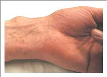 גנגליון על עורק של היד