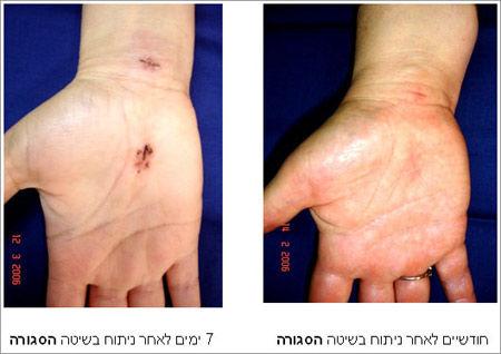 החלמה מניתוח בכף היד בשיטה הסגורה