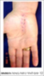 החלמה מניתוח בכף היד בשיטה הפתוחה