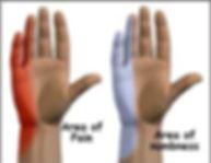 מיקום הכאב וחוסר תחושה בכף היד