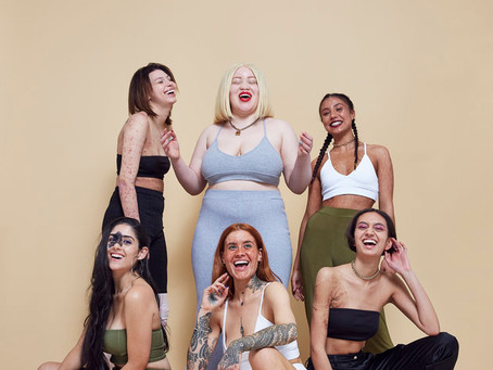 #InYourOwnSkin campaign for Missguided by Zoe McConnell