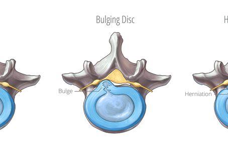 Do I Have a Bulged or Slipped disc?