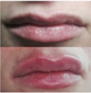 botox lip injections