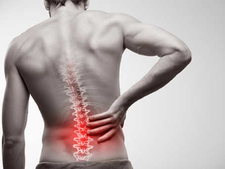 Early Physical Therapy Referral for Low Back Pain, Sciatica, and Lumbar Radiculopathy