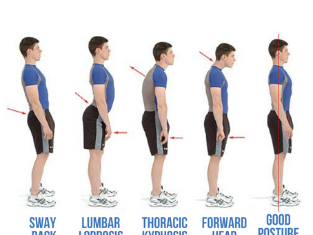 Does Your Spine Align?