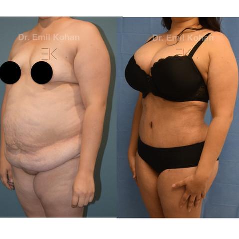 Tummy tuck and Body transformation