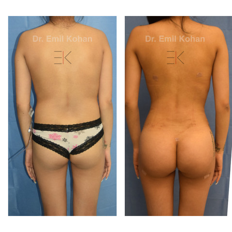 Body Transformation and Breast Augmentation