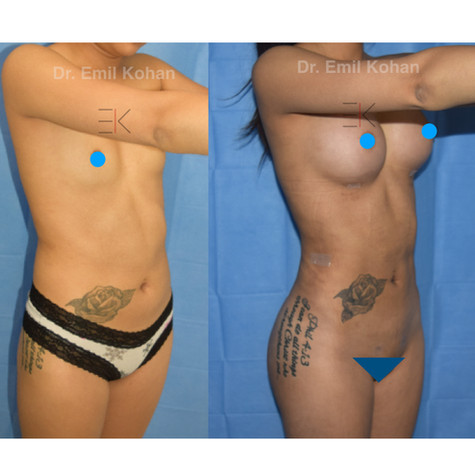 Liposuction and Breast Augmentation