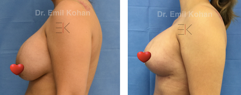 Breast Lift and Implant Exchange