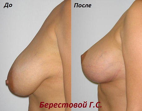 Пластический хирург Краснодар Берестовой Георгий Сергеевич