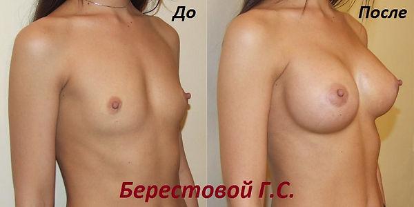 увеличение груди цена в Краснодаре