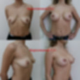 Подтяжка груди с увеличением