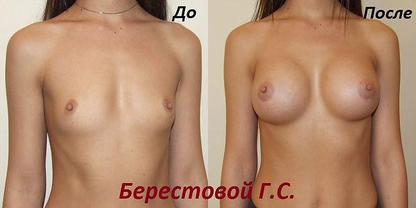 маммопластика увеличение