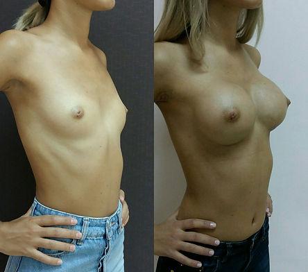 увеличение груди Ставрополь