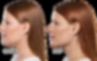 aqualix double chin