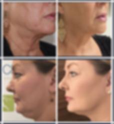 HIFU face non surgical face lift