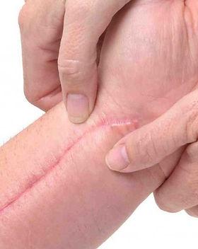 Post-Surgical-Scar-Massage3-1024x682_edi