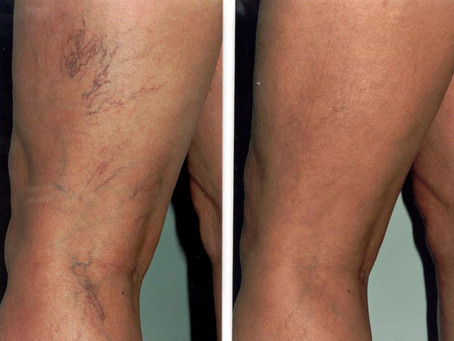 Varicose Veins:Yes, varicose veins are unattractive but there's more to the story.
