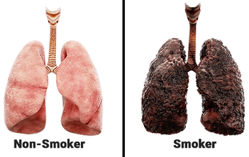 lung smoker non.png