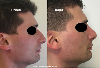 Rinosettoplastica uomo, Beca Clinique Lu