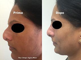 Rinosettoplastica Beca Clinique Lugano-M