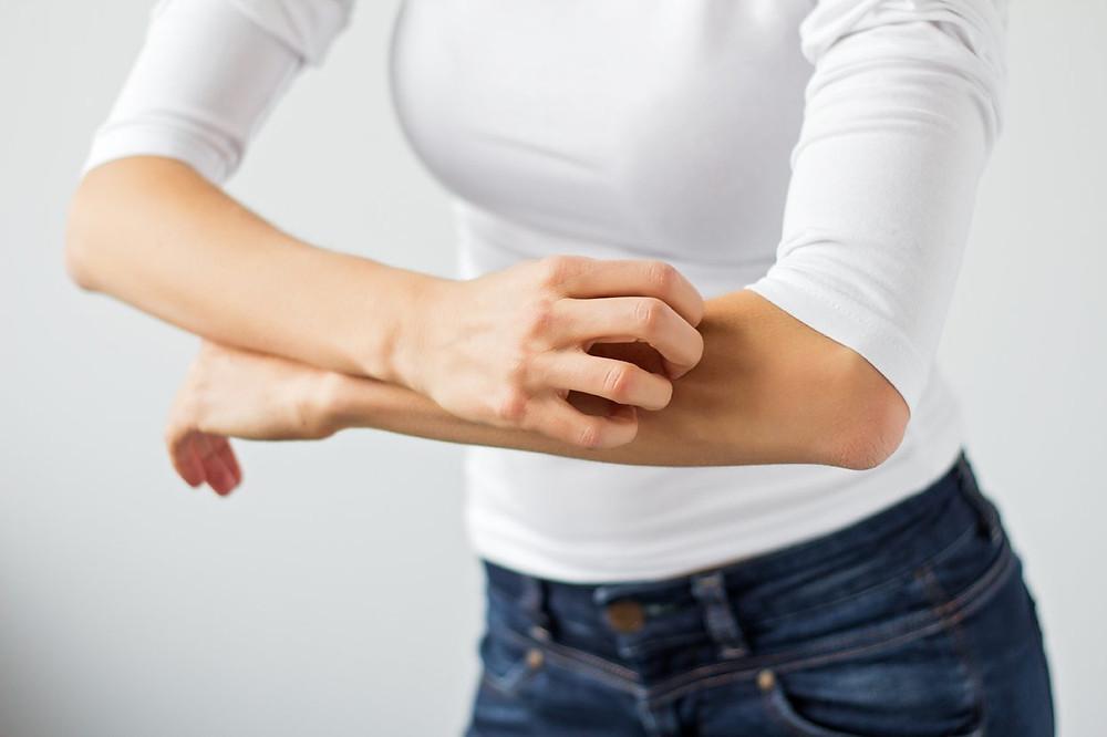 Mulher com dermatite atópica se coçando