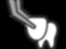 service-panel-veneers_edited.png