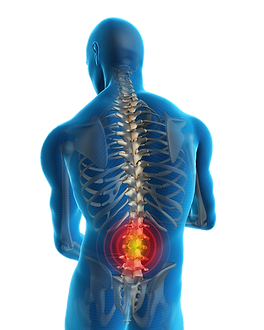 Diagram of Low Back Pain