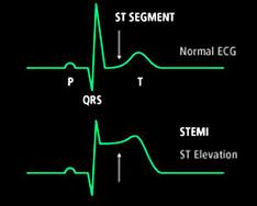 Liraglutide migliora la funzione ventricolare sinistra dopo STEMI