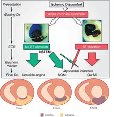 Pre-trattamento con prasugrel nei pazienti con NSTEMI