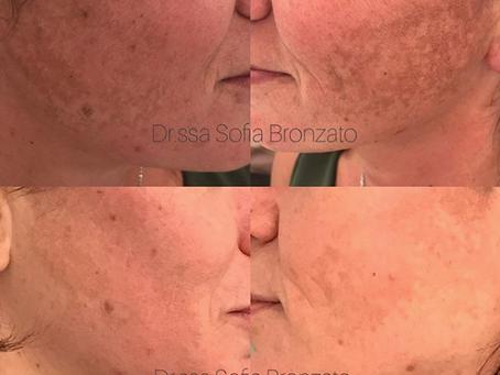 Come trattare la pelle con acne e macchie