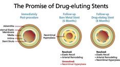 Colchicina reduce la restenosi degli stent nei pazienti diabetici