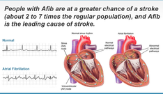 Ranolazina potrebbe essere utile contro la fibrillazione atriale nei pazienti con sindroma coronaric